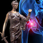 DePuy Pinnacle Hip Lawsuit MDL