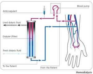 GranuFlo and dialysis injury diagram