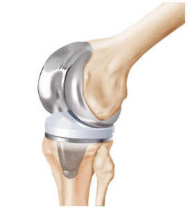 Zimmer Knee Replacement