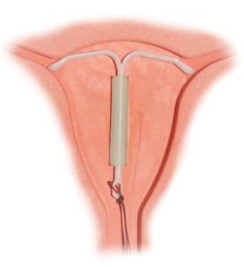 Mirena IUD inserted
